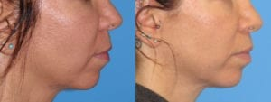 dr-sanders-san-fernando-valley-Lip-lift_patient-3-2