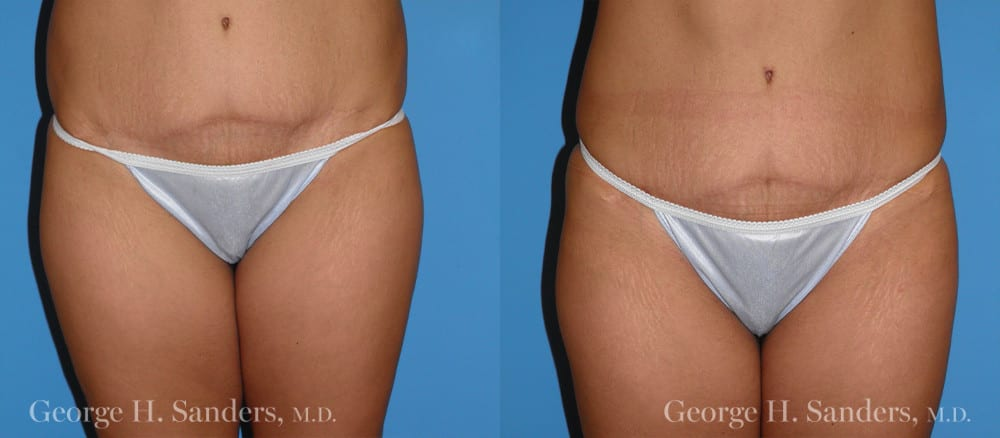 Patient 2a Liposuction Before and After