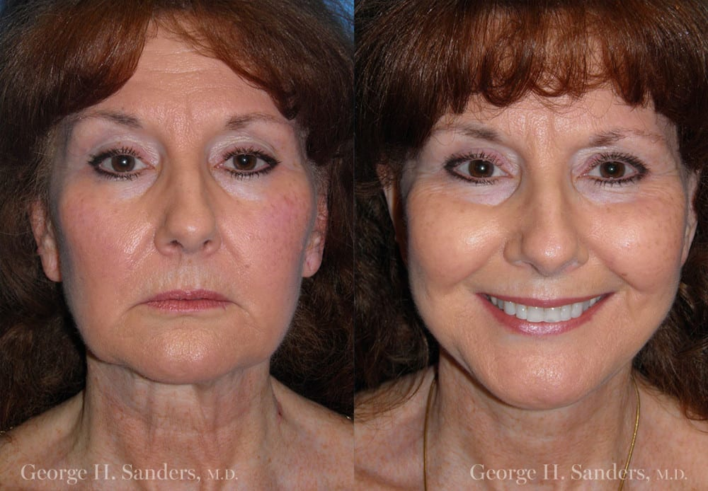 Patient 6a MACS Lift Before and After