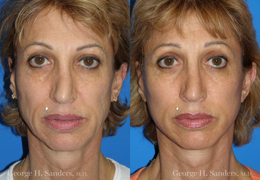 Patient 7a MACS Lift Before and After
