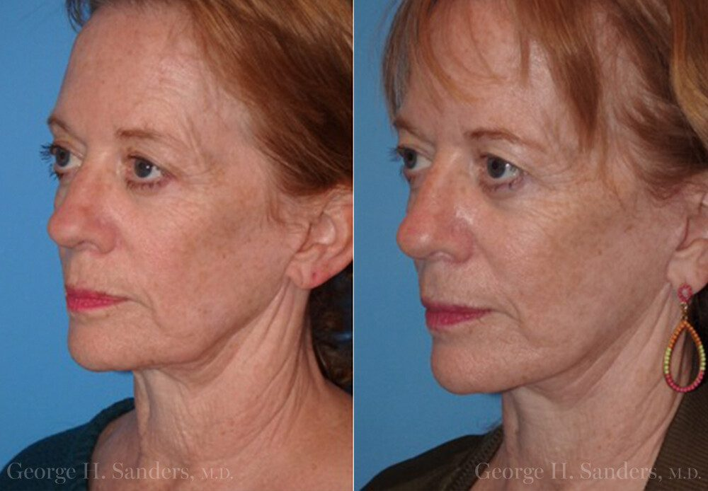 dr-sanders-san-fernando-valley-Neck-lift_Patient-13-2