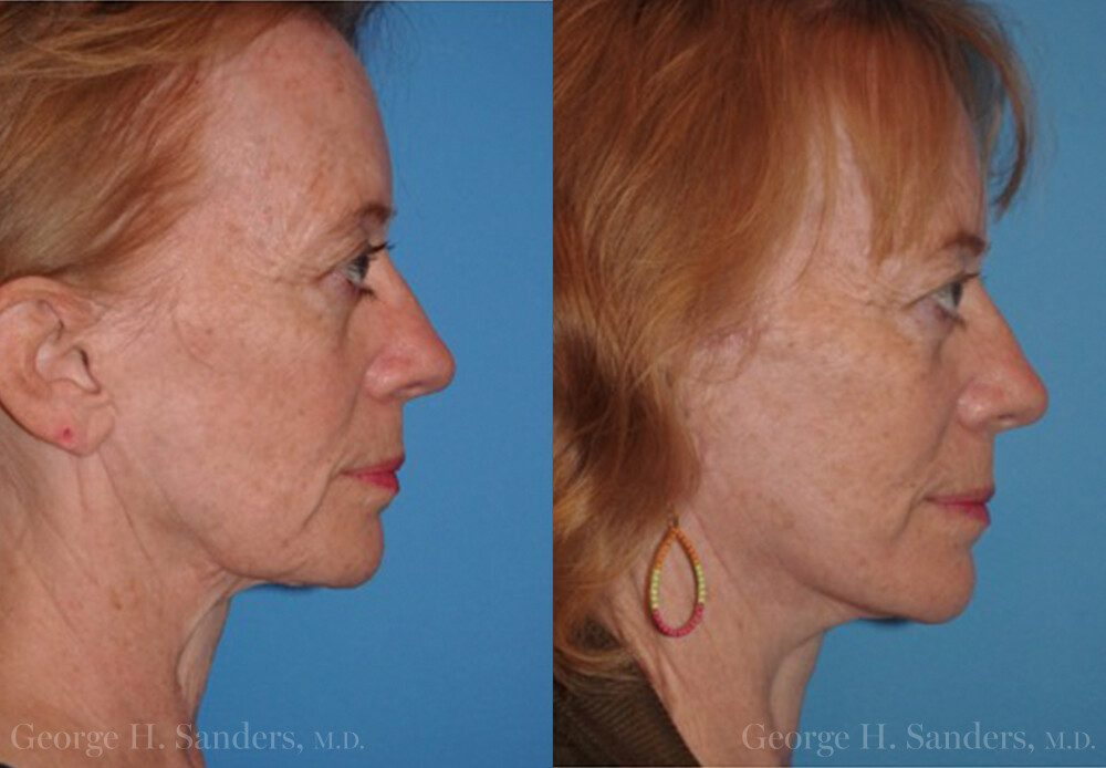 dr-sanders-san-fernando-valley-Neck-lift_Patient-13-3