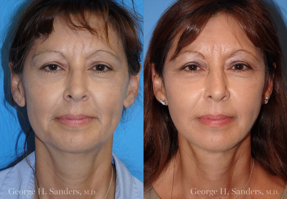 Patient 16a Face Lift Before and After