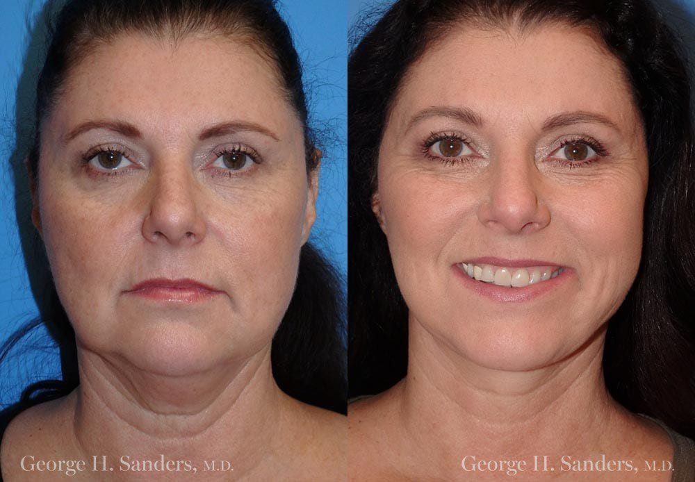 Patient 17a Face Lift Before and After
