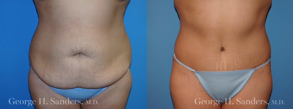 Patient 23a Tummy Tuck Before and After