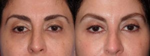 dr-sanders-los-angeles-brow-lift-patient-6-1