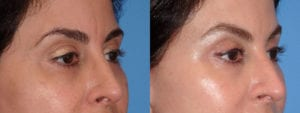 dr-sanders-los-angeles-brow-lift-patient-6-2