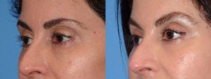 dr-sanders-los-angeles-brow-lift-patient-6-3