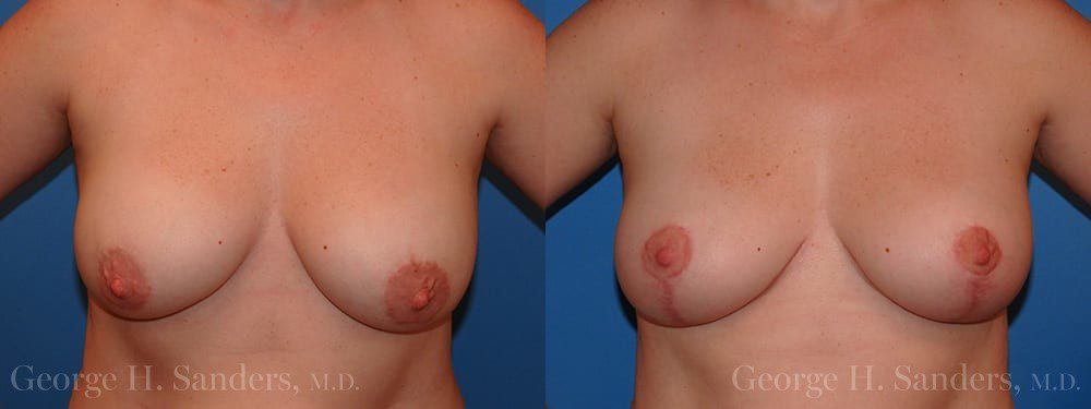 dr-sanders-los-angeles-breast-capsules-patient-15-1