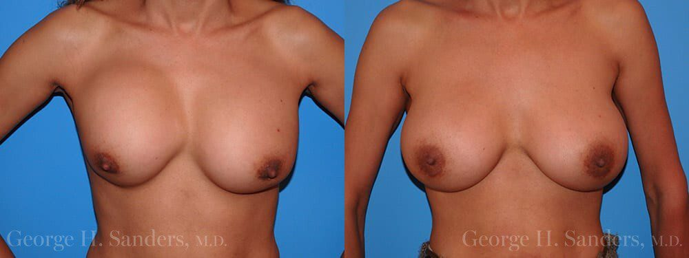 dr-sanders-los-angeles-breast-capsules-patient-16-1
