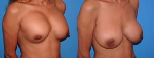 dr-sanders-los-angeles-breast-capsules-patient-16-2