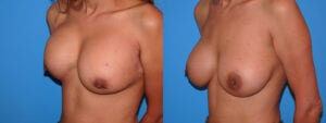 dr-sanders-los-angeles-breast-capsules-patient-16-3