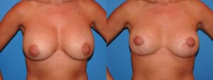 dr-sanders-los-angeles-breast-capsules-patient-17-1