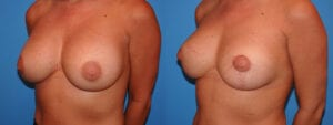 dr-sanders-los-angeles-breast-capsules-patient-17-2