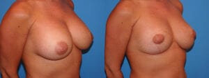 dr-sanders-los-angeles-breast-capsules-patient-17-3