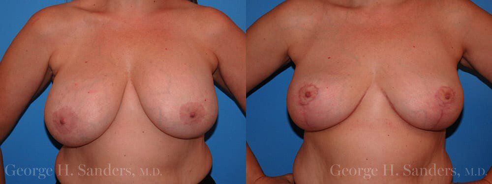 dr-sanders-los-angeles-breast-implant-removal-patient-patient-7-1