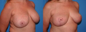 dr-sanders-los-angeles-breast-implant-removal-patient-patient-7-3