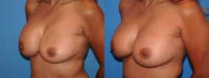 dr-sanders-los-angeles-breast-capsulectomy-patient-18-2