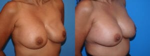 dr-sanders-los-angeles-breast-capsulectomy-patient-18-3